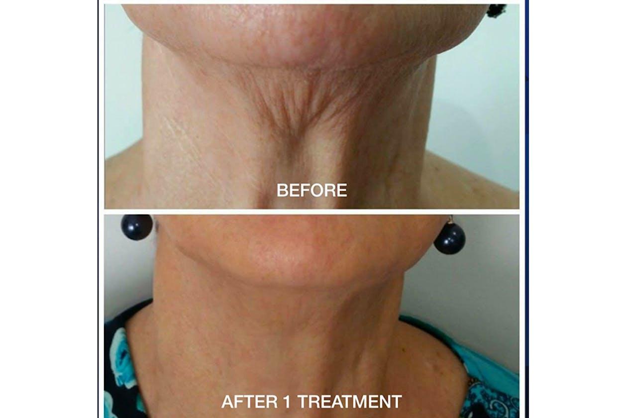 3D Beauty Clinic - Essendon image 7