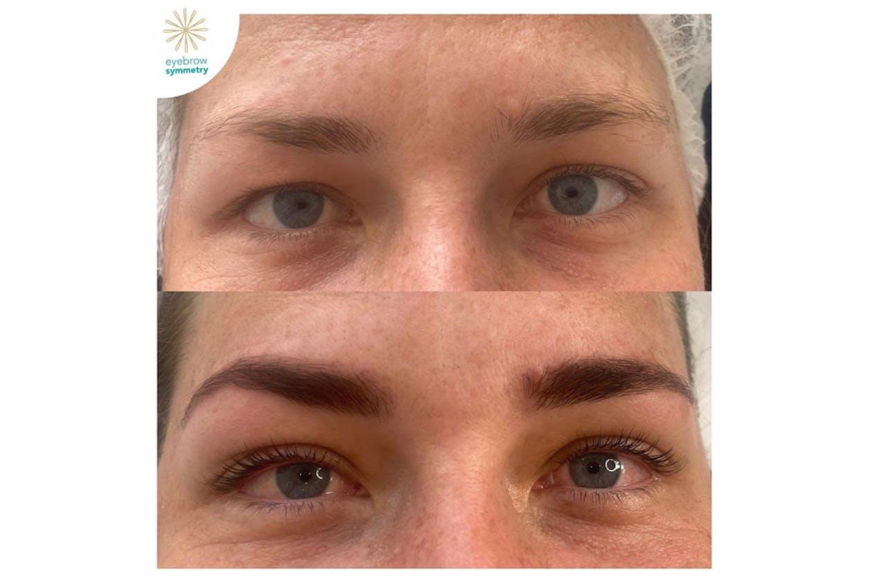 Eyebrow Symmetry image 3