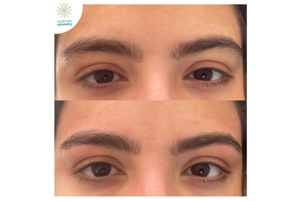 Eyebrow Symmetry image 2