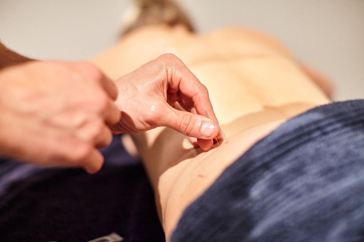 Peninsula Acupuncture & Natural Medicine image 9