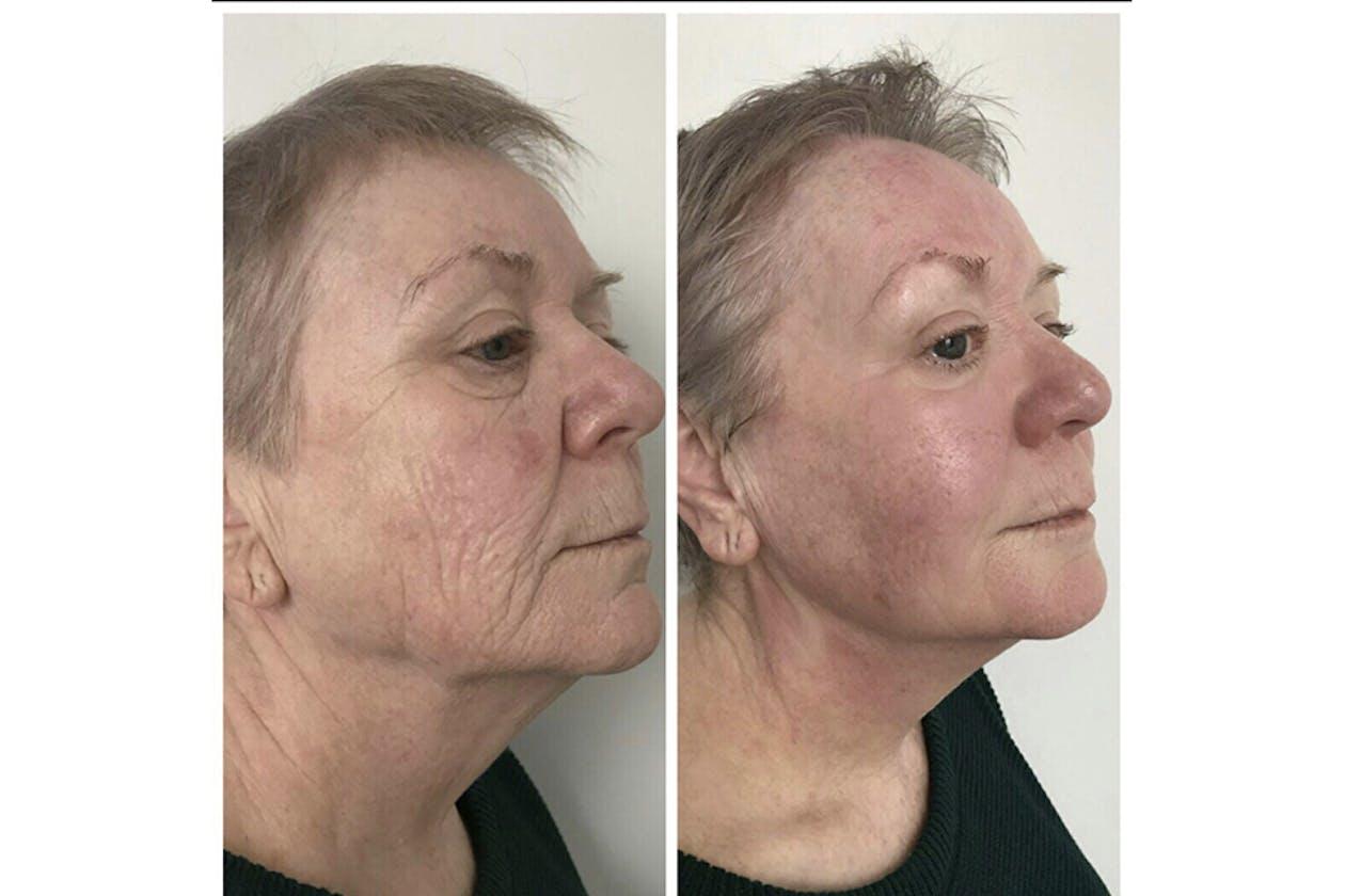 3D Beauty Clinic - Essendon image 11